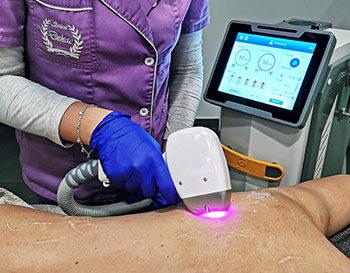 Laserska epilacija Salon Dekac