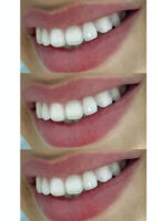 Cirkon na zub