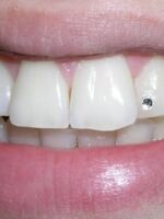 Cirkon na zubu
