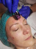Mezoterapija lica