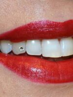Ugradnja cirkona na zub