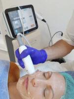 HI FU Estetski Ultrazvuk – Liftera